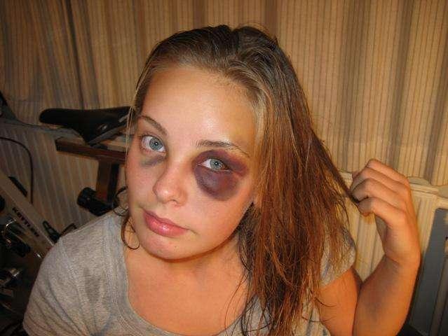 Hematoma Periorbital (olho negro)