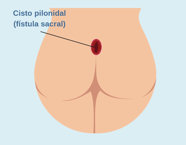 Cisto Pilonidal Ou Fístula Sacral