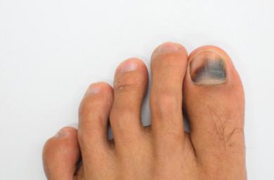 Hematoma Subungueal (Unha Negra, Unha Pisada), O Que Fazer E Como Prevenir