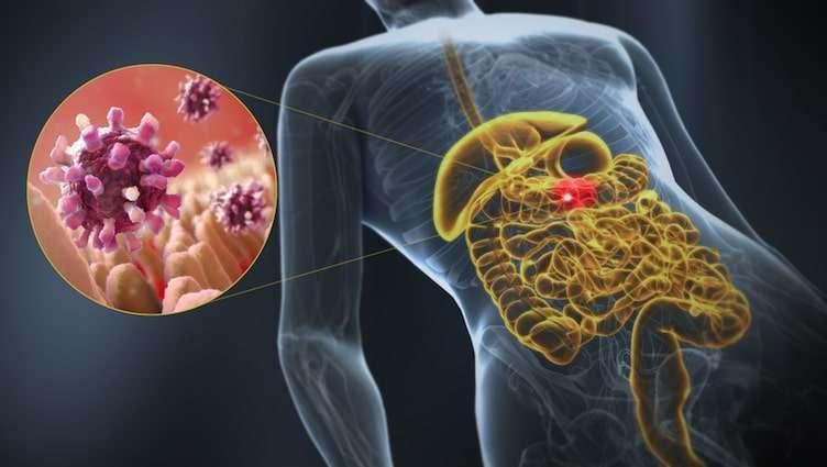 Ilustração 3D Gastroenterite