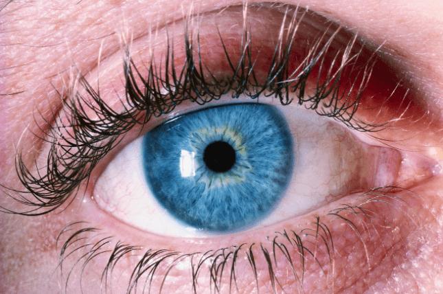 Conheça Tudo Sobre O Glaucoma
