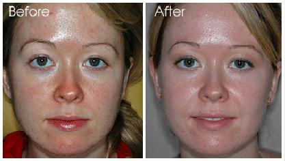 ácido glicólico antes e depois do tratamento no rosto
