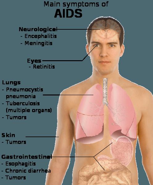 Síndrome da Imunodeficiência Adquirida – SIDA (infecção com vírus da imunodeficiência humana VIH)