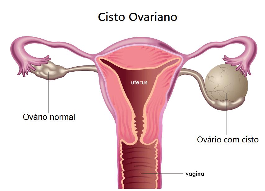 Como identificar e tratar o Cisto no Ovário