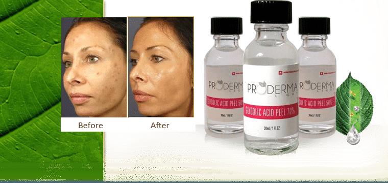 Foto de peeling de ácido glicólico antes e depois