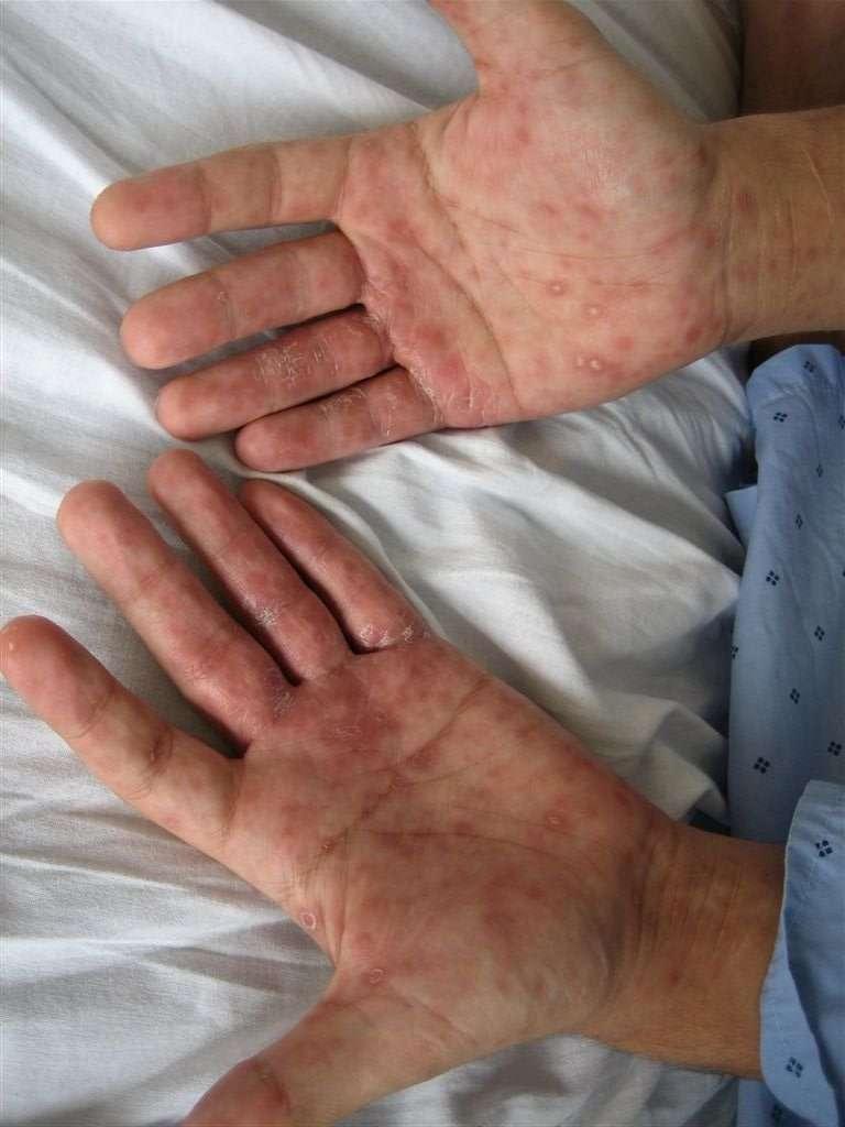 Sífilis (infecção transmitida através das relações sexuais provocada por uma bactéria chamada Treponema palli)