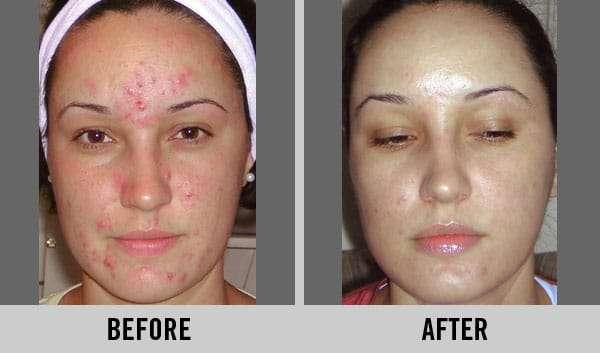 acne antes e depois do ácido glicólico