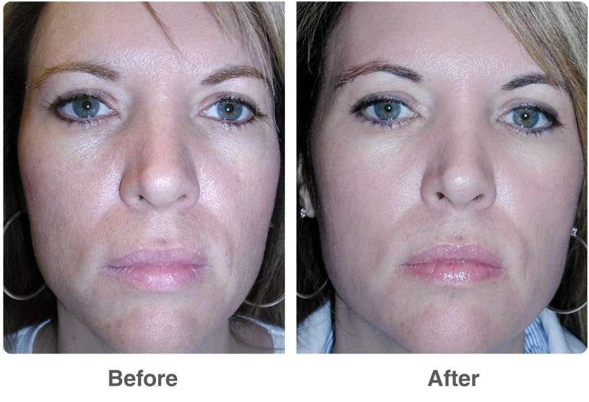 antes e depois do ácido glicólico