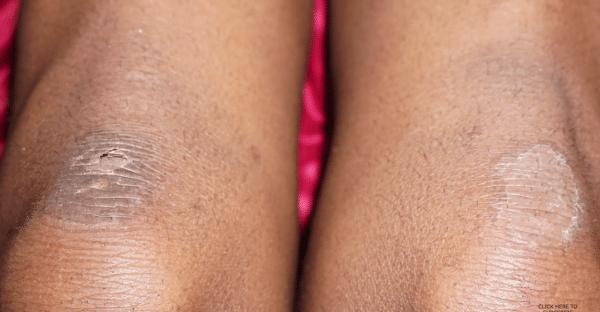 calosidades-nos-joelhos