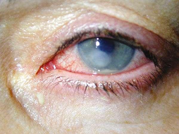 Úlcera de Córnea (ferida nas camadas profundas do olho)