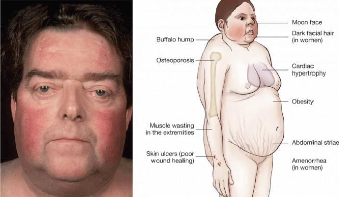 Síndrome de Cushing (alterações no corpo devido ao excesso de hormonas)