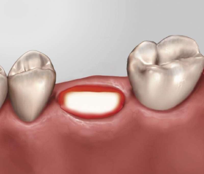 Traumatismo Dentário (dentes partidos)