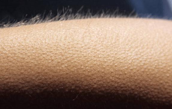 Pele de Galinha