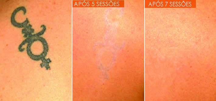 Remover Tatuagens a Laser