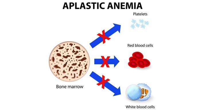 Anemia Aplástica