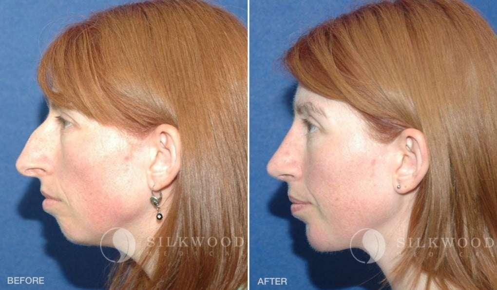 Fotos de mentoplastia de aumento e rinoplastia antes e depois