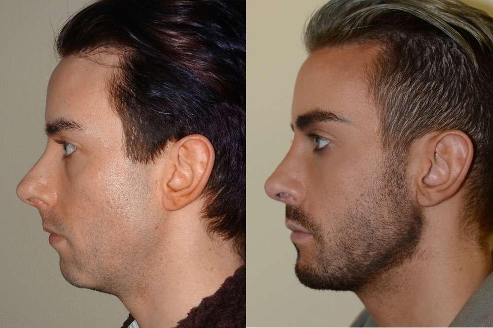 mentoplastia de aumento antes e depois