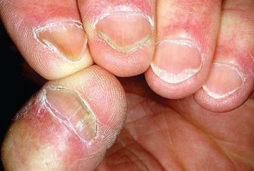 Unhas Onduladas é Um Sinal De Deficiência De Ferro, Causador De Anemia