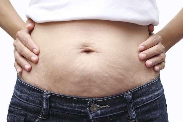 Como acabar com a flacidez da barriga