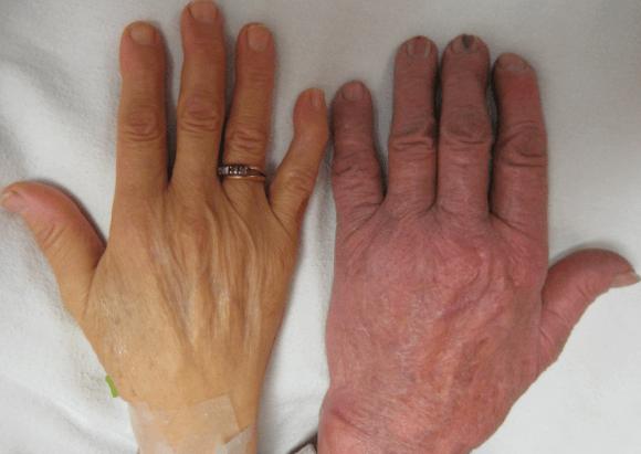 Pele Amarela, Icterícia, é Um Sintoma De Anemia