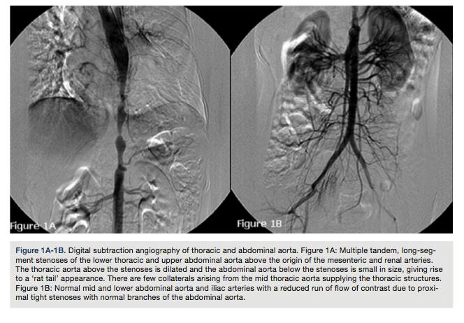 Cateterização e angiografia da aorta (estudo transradial e transfemoral)