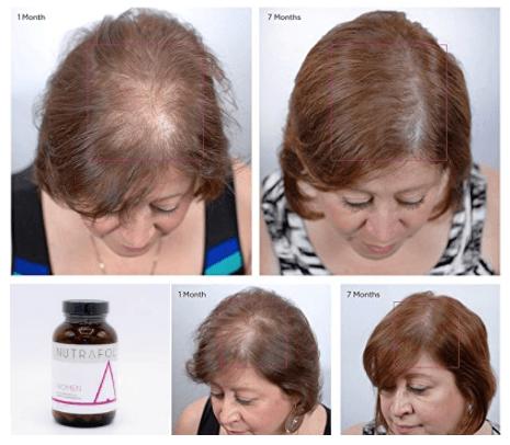 Resultados Do Suplemento Nutracêutico E De Vitaminas Nutrafol Antes E Depois Da Perda De Cabelo
