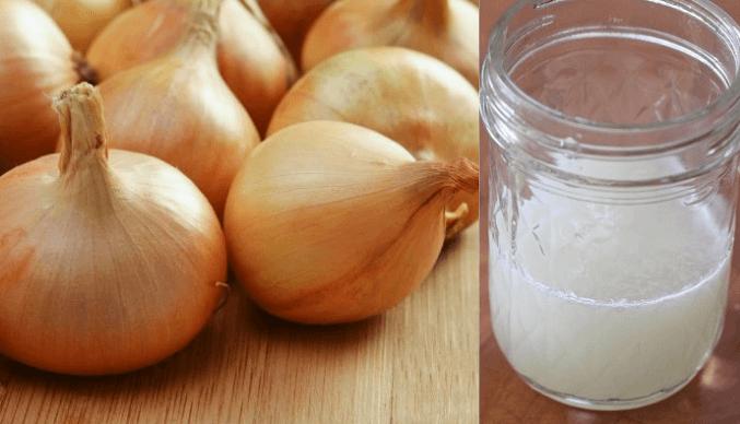 A Cebola Podem Ser Utilizada Como Alternativa Natural Aos Medicamentos Para A Queda De Cabelo