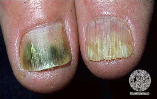 Remédio caseiro para micose nas unhas (Onicomicose)
