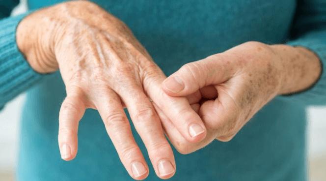 10 Remédios Caseiros para Combater a Artrite Reumatoide