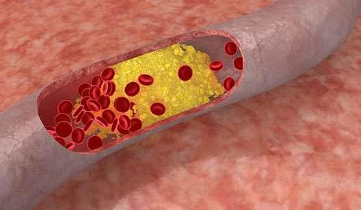 Remédio Caseiro Para Tratar Gordura no Sangue