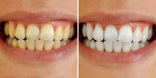 Clareamento Dental Caseiro Bicarbonato De Sodio Sal Cha De