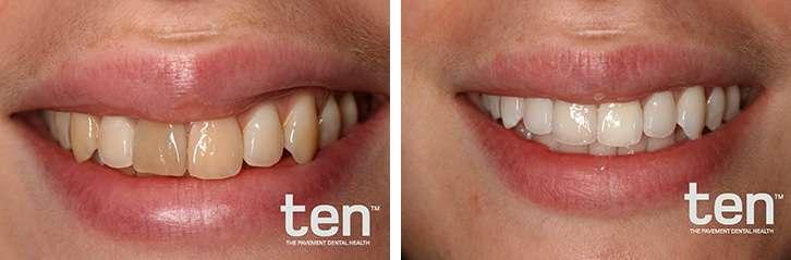 Clareamento Dental Caseiro: Veja o Antes e Depois!