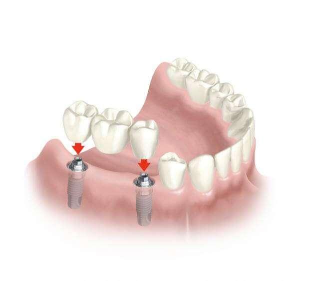 Dúvidas Frequentes sobre Implantes Dentários – Perguntas e Respostas