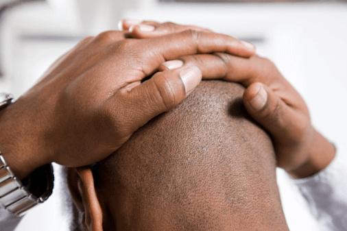Indicações e Candidatos ao Implante Capilar – Todas as Pessoas podem fazer?