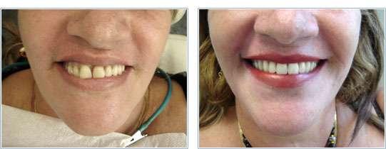 Taxa de Sucesso dos Implantes Dentários
