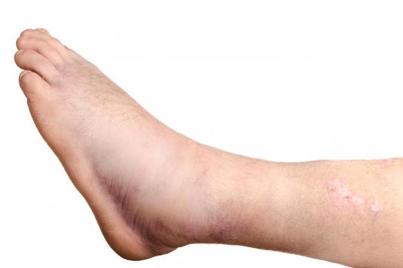 pes-e-pernas-inchadas