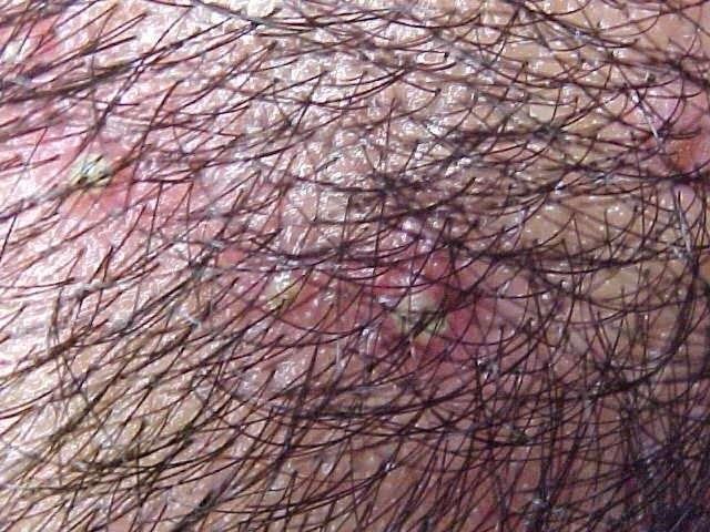 Irritação Tipo Espinhas no Couro Cabeludo