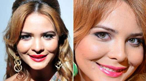 Geisy Arruda em Fotos Antes e Depois da Cirurgia Plástica