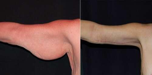 Cirurgia plástica de braço elimina a flacidez e o excesso de pele