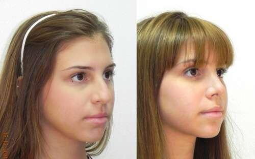 antes e depois da rinoplastia fotos