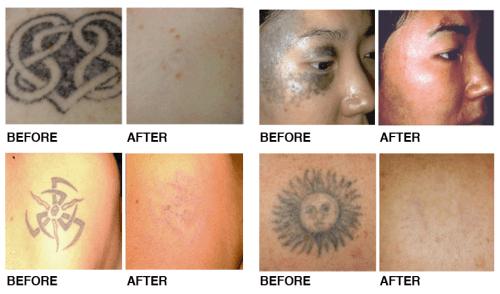 Cirurgia para remover tatuagem a Laser