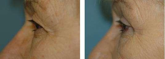 resultado da blefaroplastia antes e depois