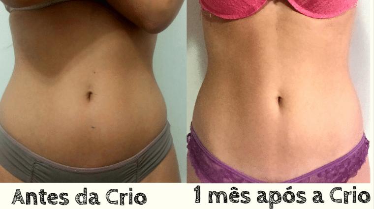 Criolipolise Antes E Depois