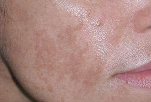 Cloasma gravídico – Como evitar manchas no rosto durante a gravidez