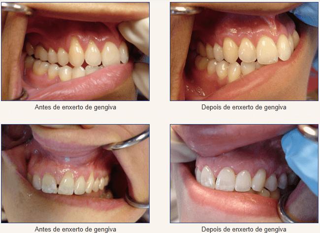 Recessão gengival (Falta de Gengiva) antes e depois