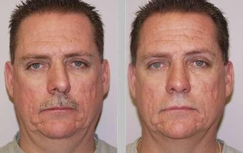 desvio de septo nasal antes e depois da rinoplastia
