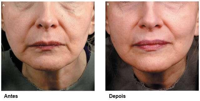 fladidez no rosto antes e depois da radiofrequência