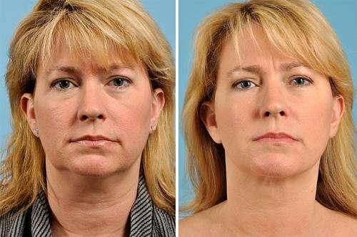 Lifting – Tipos de Lifting no rosto, pescoço (papada), seios, glúteos e braços