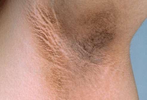 Manchas escuras e irritações na virilha, axilas e coxas: Acabe com elas