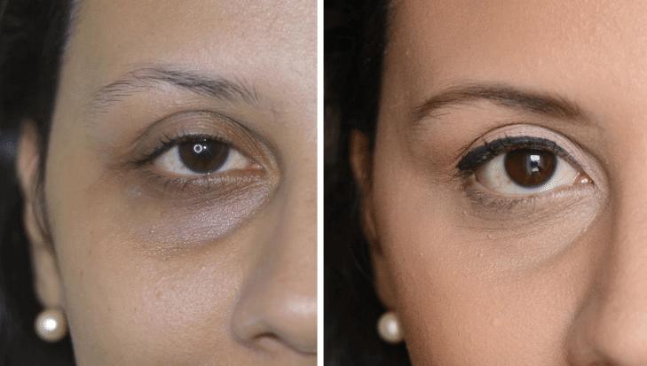 Como eliminar as olheiras